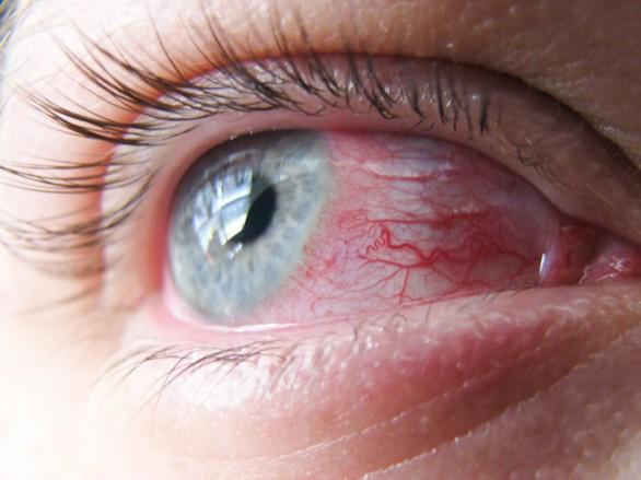 allergia-1