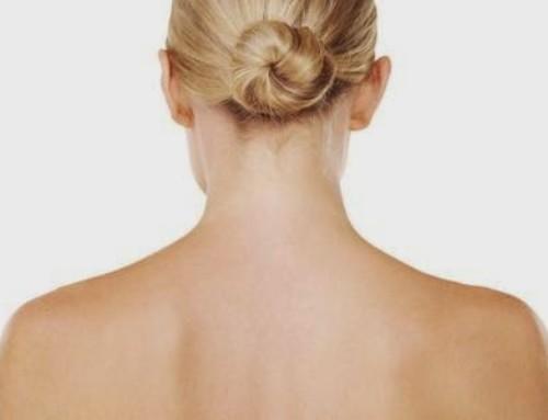 7 consigli per eliminare i brufoli sulla schiena