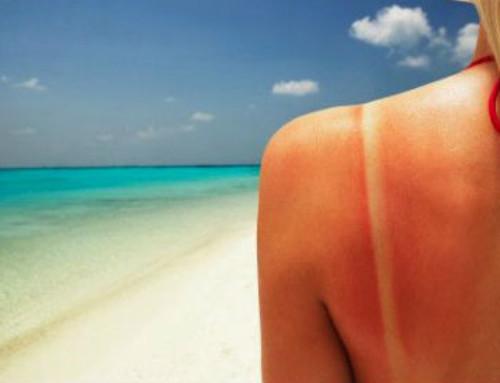 7 rimedi naturali contro le scottature solari